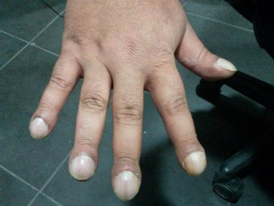 dedos hipocraticos